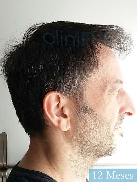 Jose Luis 49 Madrid trasplante capilar turquia 12 meses 3