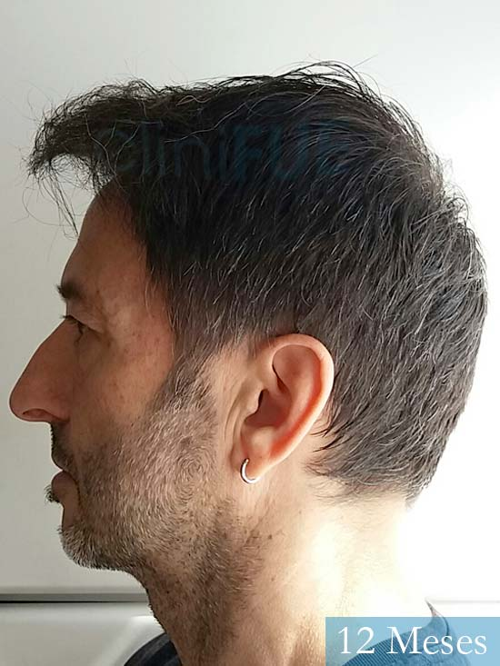 Jose Luis 49 Madrid trasplante capilar turquia 12 meses 4