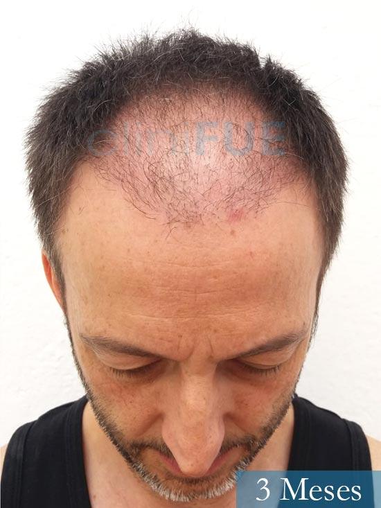 Jose Luis 49 Madrid trasplante capilar turquia 3 meses 2