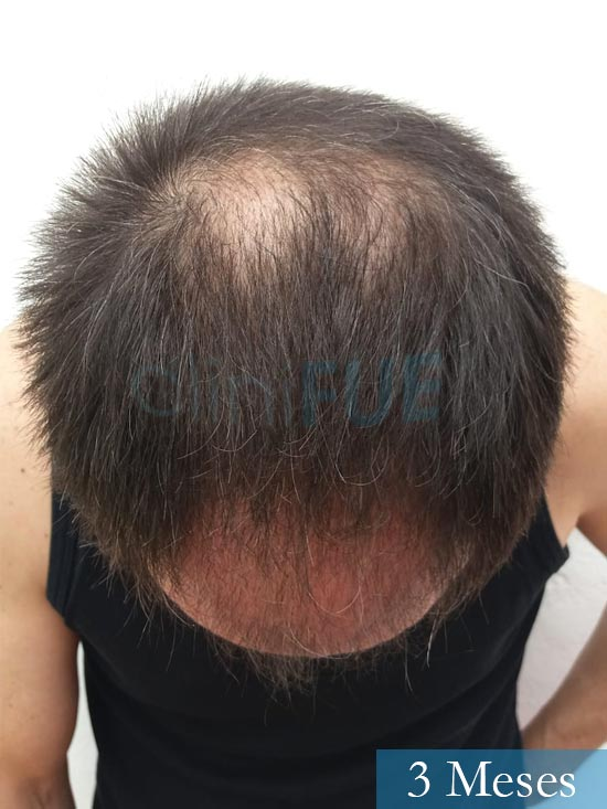 Jose Luis 49 Madrid trasplante capilar turquia 3 meses 3