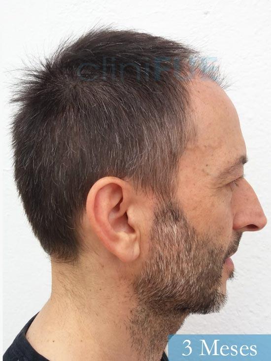 Jose Luis 49 Madrid trasplante capilar turquia 3 meses 4