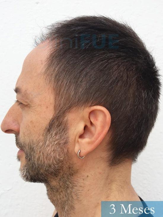 Jose Luis 49 Madrid trasplante capilar turquia 3 meses 5