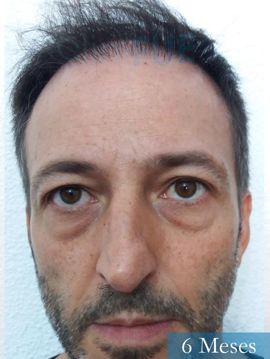 Jose Luis 49 Madrid trasplante capilar turquia 6 meses