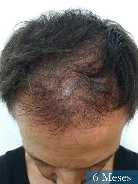 Jose Luis 49 Madrid trasplante capilar turquia 6 meses 2