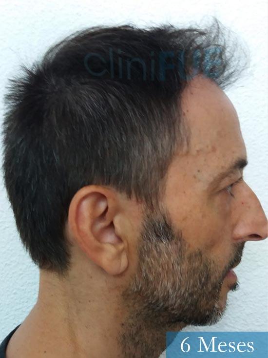 Jose Luis 49 Madrid trasplante capilar turquia 6 meses 3