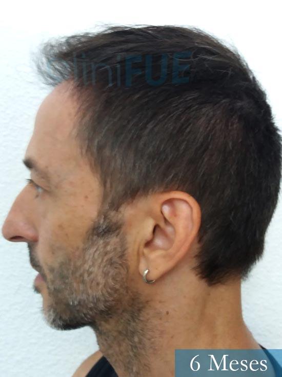 Jose Luis 49 Madrid trasplante capilar turquia 6 meses 4