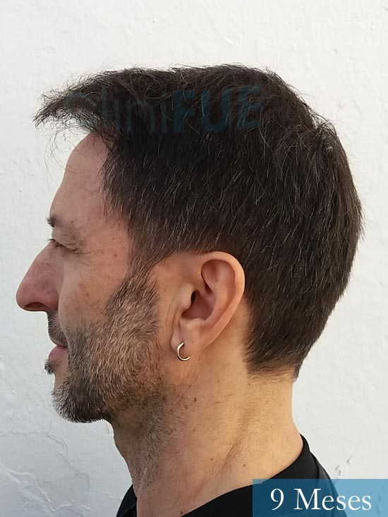 Jose Luis 49 Madrid trasplante capilar turquia 9 meses 4