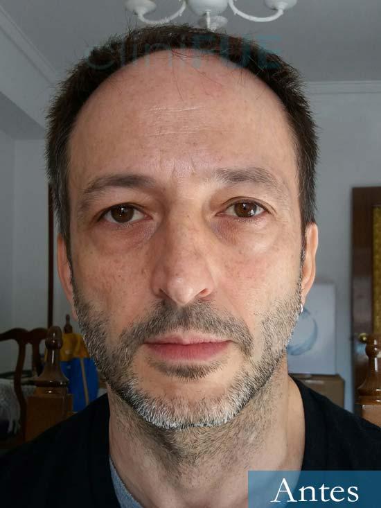 Jose Luis 49 Madrid trasplante capilar turquia antes