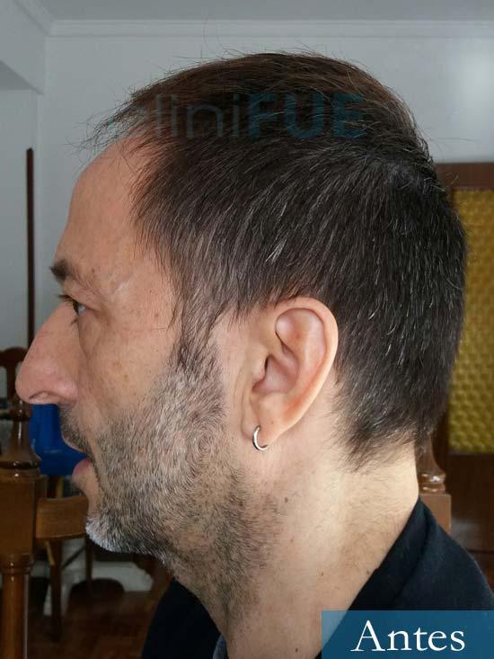 Jose Luis 49 Madrid trasplante capilar turquia antes 5
