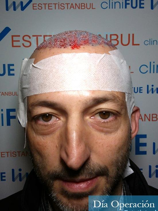 Jose Luis 49 Madrid trasplante capilar turquia dia operacion