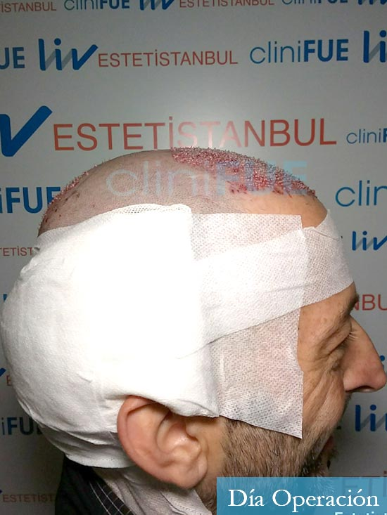 Jose Luis 49 Madrid trasplante capilar turquia dia operacion 2