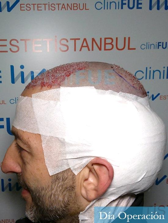 Jose Luis 49 Madrid trasplante capilar turquia dia operacion 3