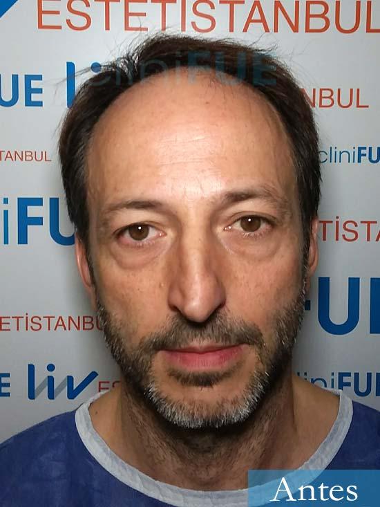 Jose Luis 49 Madrid trasplante capilar turquia antes 1