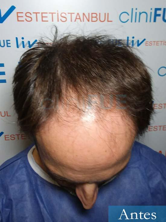 Jose Luis 49 Madrid trasplante capilar turquia antes 2
