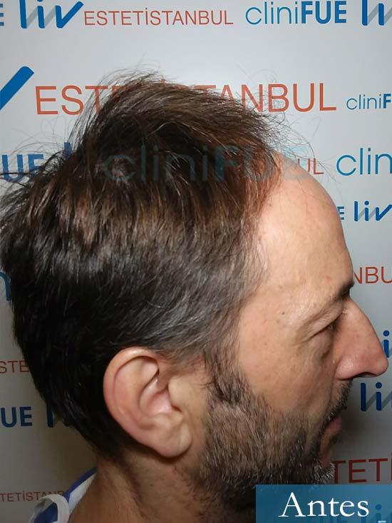 Jose Luis 49 Madrid trasplante capilar turquia antes 3