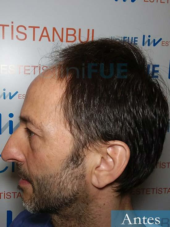 Jose Luis 49 Madrid trasplante capilar turquia antes 4