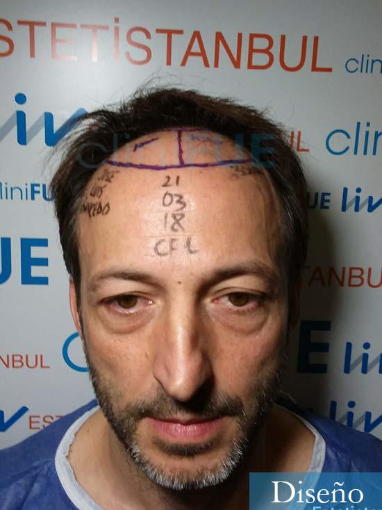Jose Luis 49 Madrid trasplante capilar turquia dia operacion diseno
