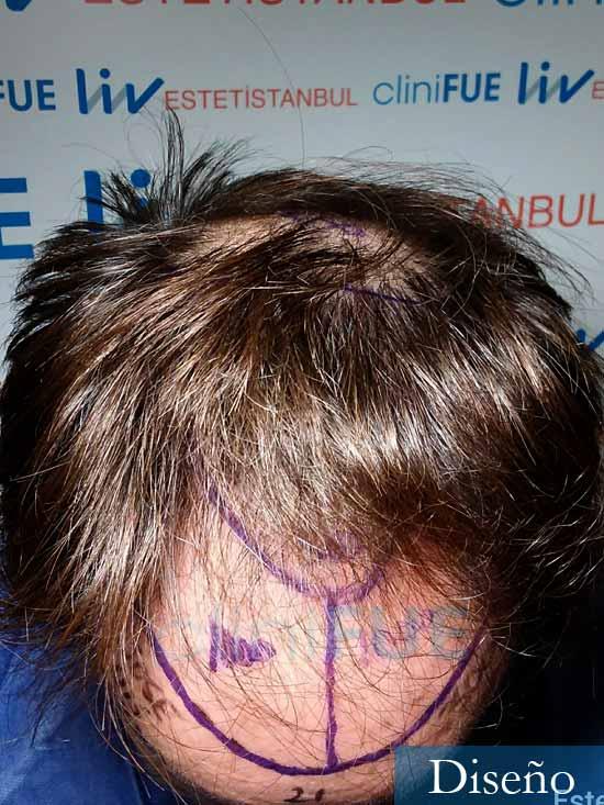 Jose Luis 49 Madrid trasplante capilar turquia dia operacion diseno 2