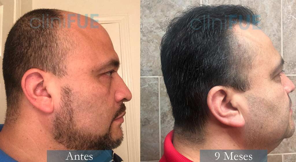 Trasplante capilar de Julio 48 Años con cliniFUE