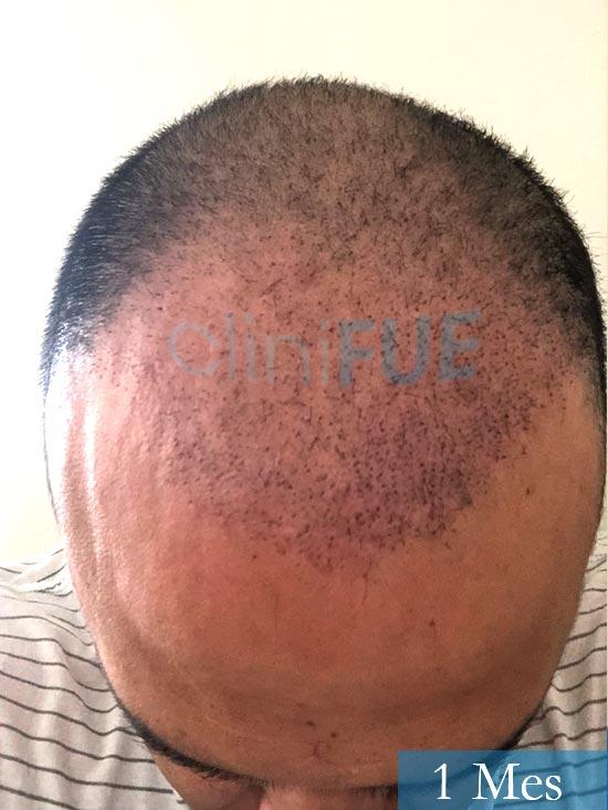 Julio 48 injerto capilar turquia 1 mes 2