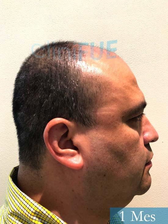 3Julio 48 injerto capilar turquia 1 mes 3