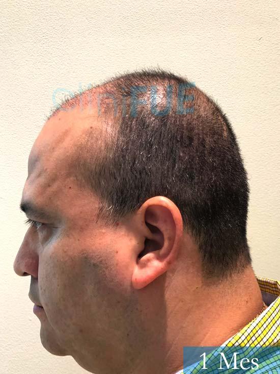 Julio 48 injerto capilar turquia 1 mes 4