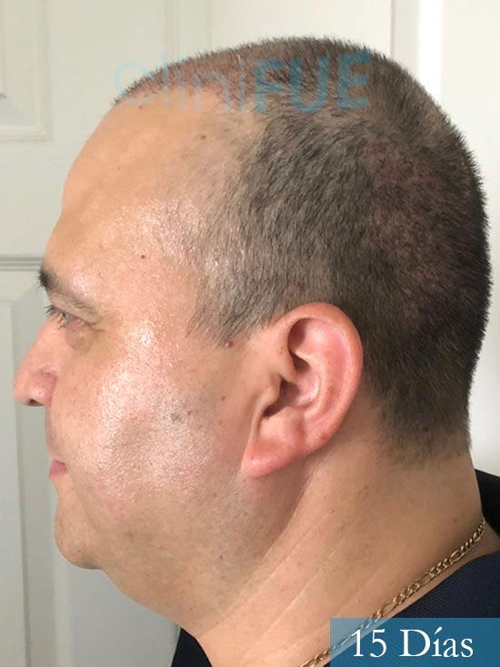 Julio 48 injerto capilar turquia 15 dias 5