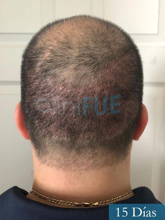 Julio 48 injerto capilar turquia 15 dias 6