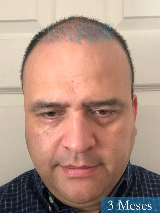 Julio 48 injerto capilar turquia 3 meses