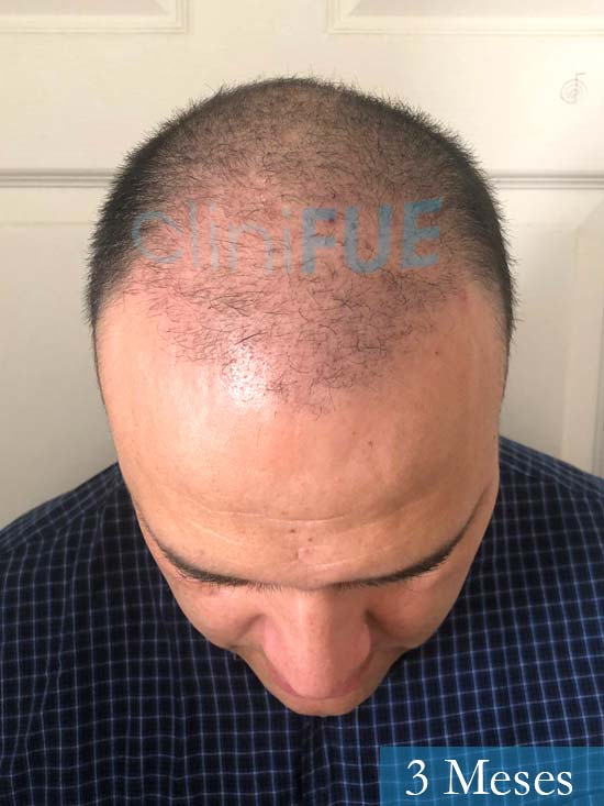 Julio 48 injerto capilar turquia 3 meses 2