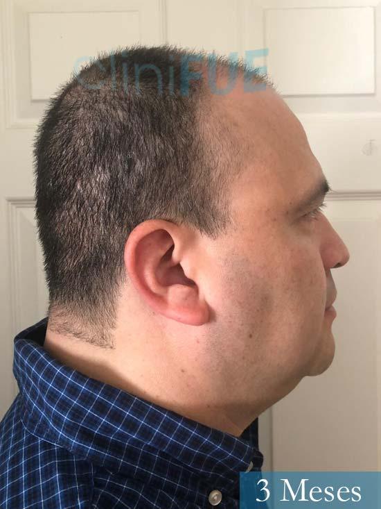 Julio 48 injerto capilar turquia 3 meses 3