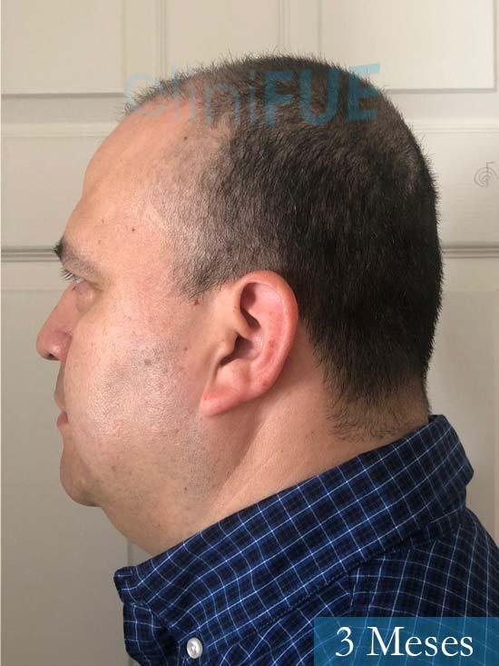 Julio 48 injerto capilar turquia 3 meses 4