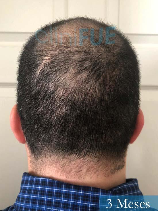 Julio 48 injerto capilar turquia 3 meses 5