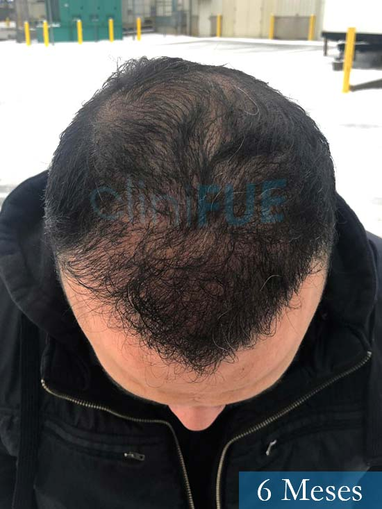 Julio 48 injerto capilar turquia 6 meses 2