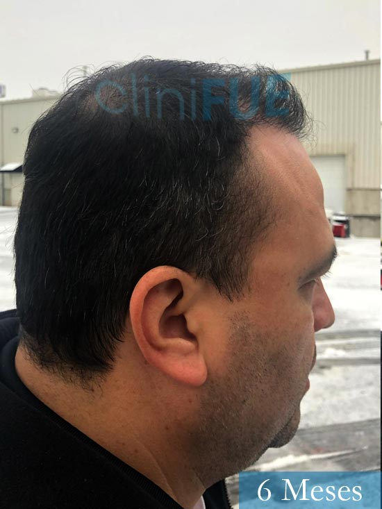 Julio 48 injerto capilar turquia 6 meses 3