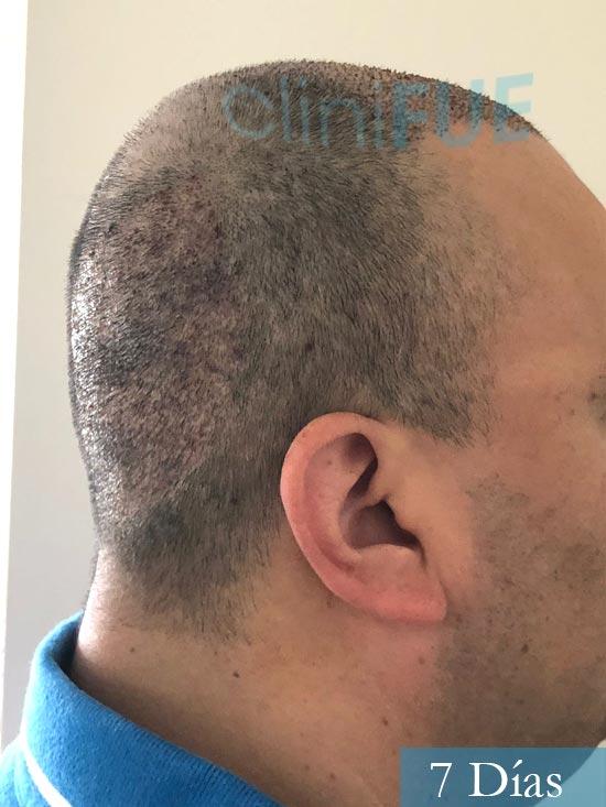 Julio 48 injerto capilar turquia 7 dias 3