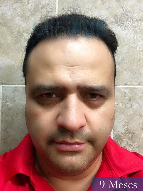 Julio 48 injerto capilar turquia 9 meses