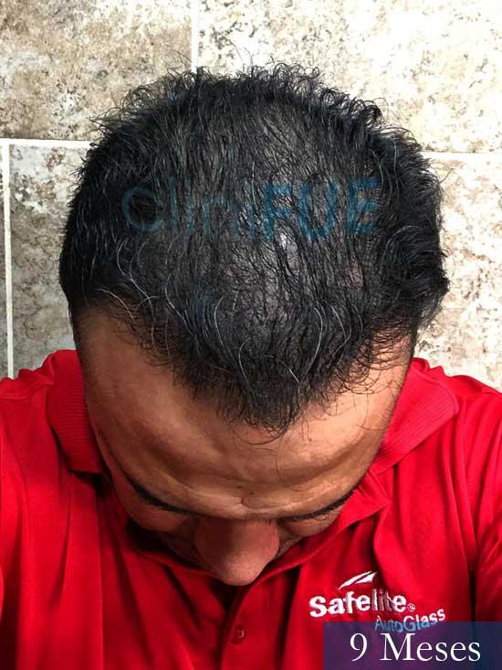 Julio 48 injerto capilar turquia 9 meses 2