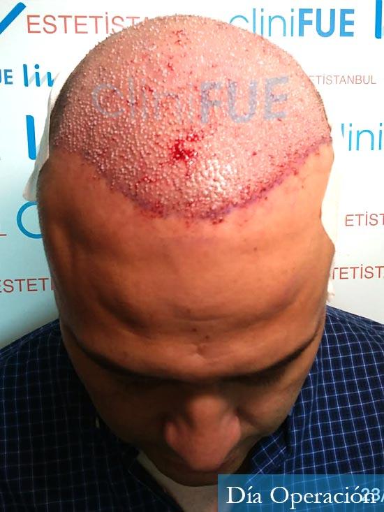 Julio 48 injerto capilar turquia dia operacion