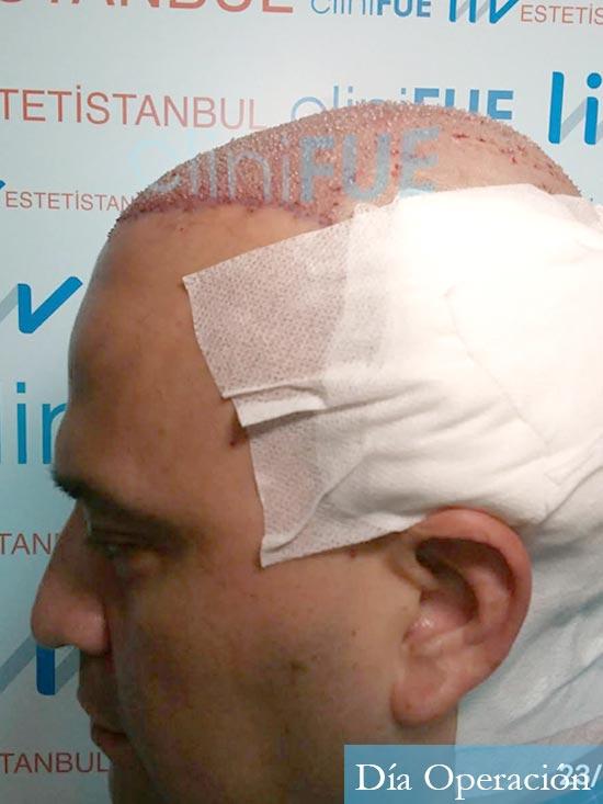 Julio 48 injerto capilar turquia dia operacion 4
