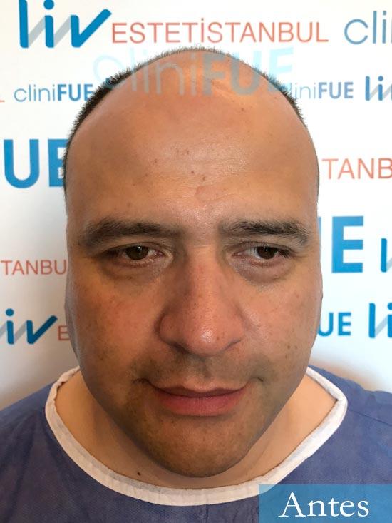 Julio 48 injerto capilar turquia dia operacion antes