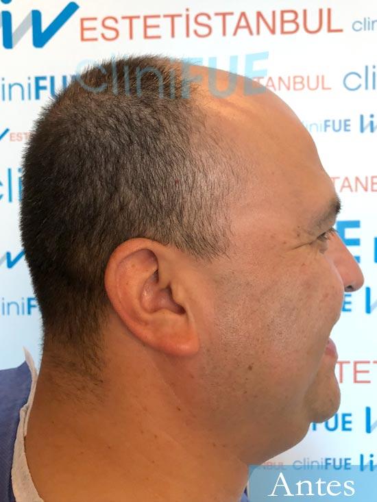 Julio 48 injerto capilar turquia dia operacion antes 3