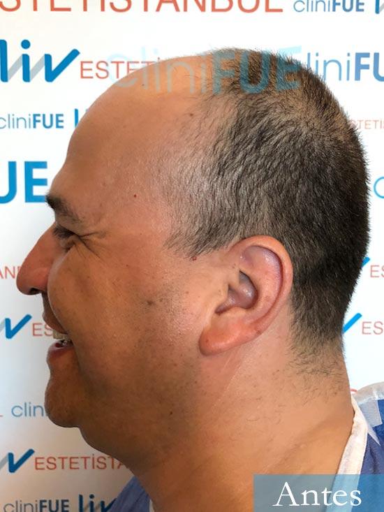 Julio 48 injerto capilar turquia dia operacion antes 4