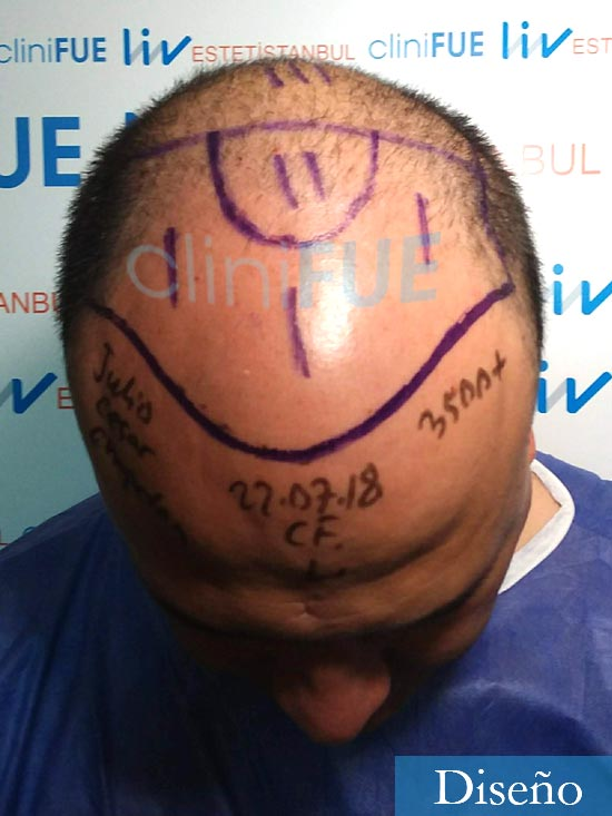 Julio 48 injerto capilar turquia dia operacion diseno 2