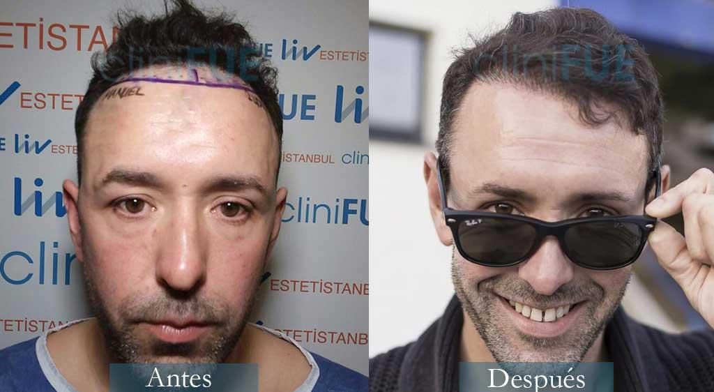 Trasplante capilar de Manuel 39 Años de Coruña con cliniFUE