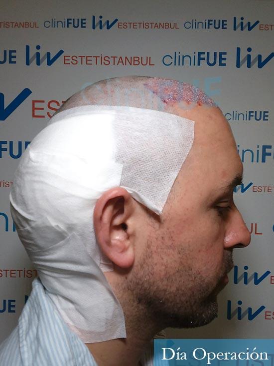 Manuel 39 Coruña injerto capilar turquia dia operacion 3