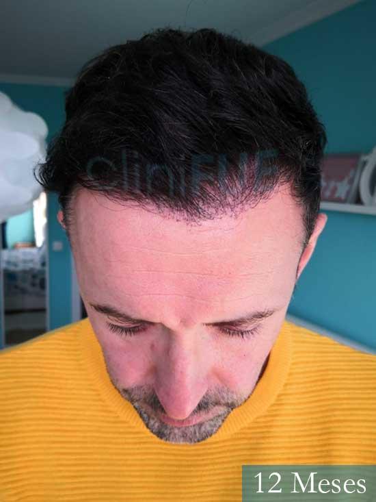 Manuel 39 Coruña injerto capilar turquia 12 meses 2