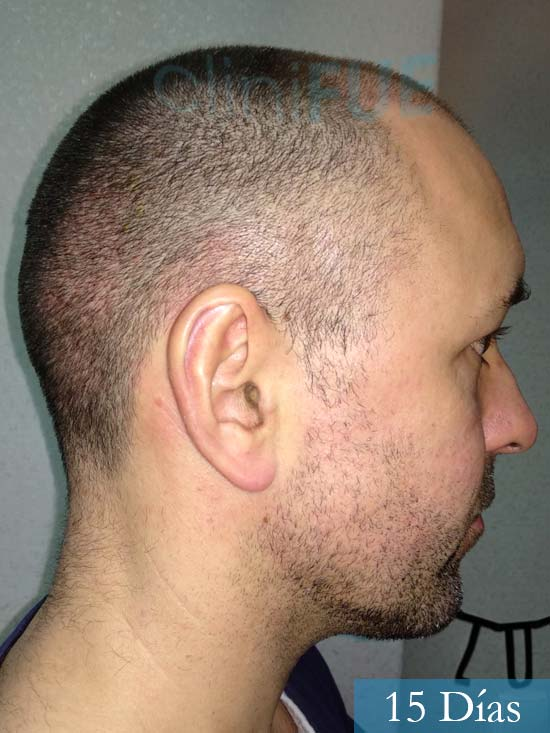 Manuel 39 Coruña injerto capilar turquia 15 dias 3
