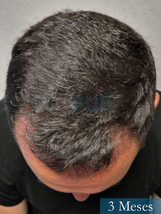 Manuel 39 Coruña injerto capilar turquia 3 meses 3