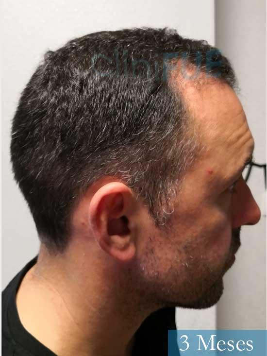 Manuel 39 Coruña injerto capilar turquia 3 meses 4